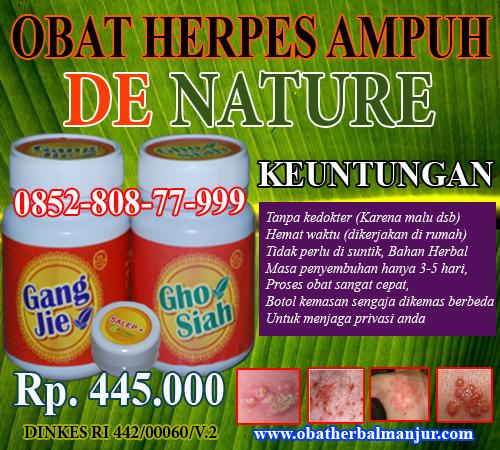 Obat Tradisional Herpes Paling Manjur